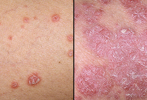 Psoriasis – Natural Herbs To Remedy Psoriasis
